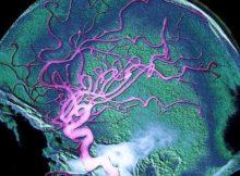 Nouvelle recherche sur le ralentissement de la maladie d'Alzheimer à Toulouse